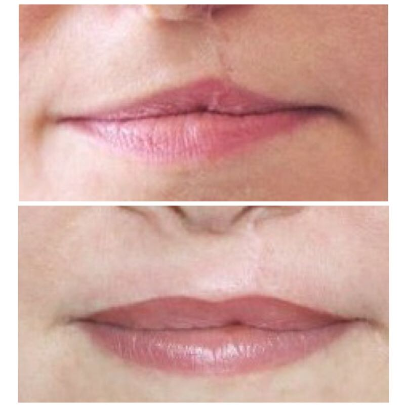 Cleft Lip Restoration Boca Raton