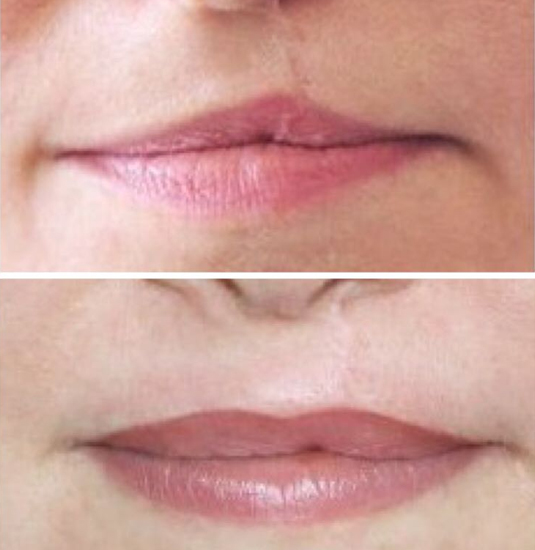 Side by Side Lip Photos
