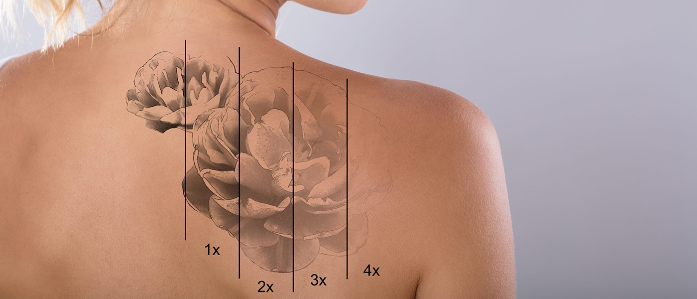 Woman's shoulder tattoo exposed - Saline Tattoo Removal Concept image