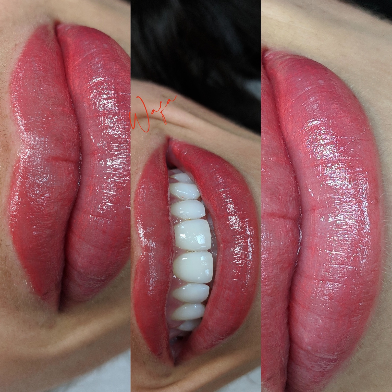Woman's lips before and after Lip Blushing with big smile